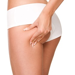 Liposuction – Microcannula Big Spring Tumescent